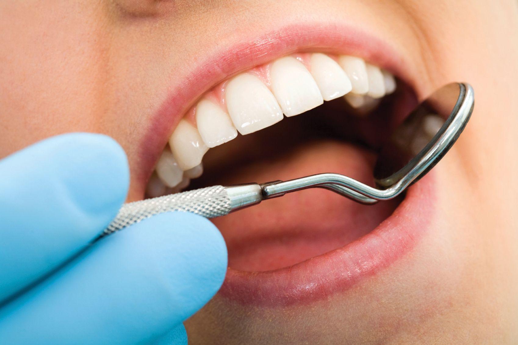 Implant dentaire : Pourquoi le vouloir ?